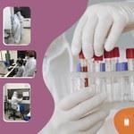Ufal Arapiraca realiza mutirão para diagnóstico de coronavírus por RT-PCR